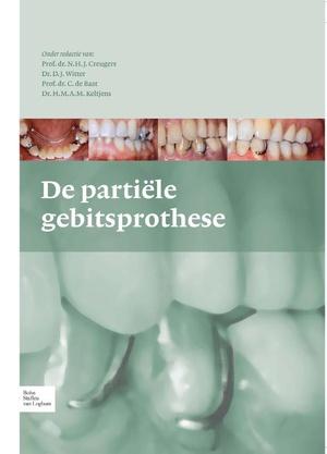 De partiele gebitsprothese