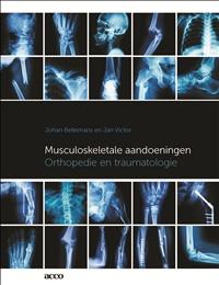 Musculoskeletale aandoeningen